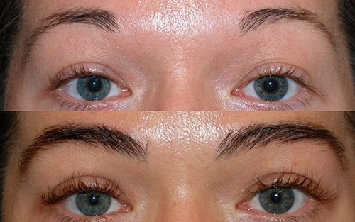 Eyebrow Transplant in Chennai