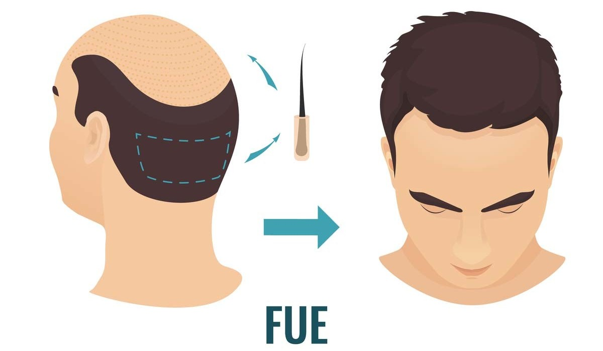 fue hair transplant in chennai