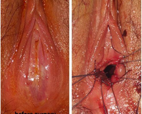 hymenectomy surgery in chennai