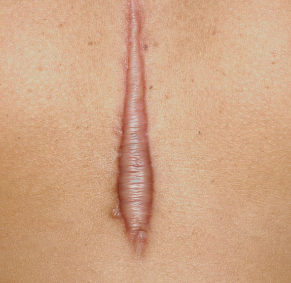 keloids and hypertrophic scars treatment in chennai