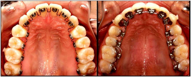 Lingual Braces clinic in Chennai