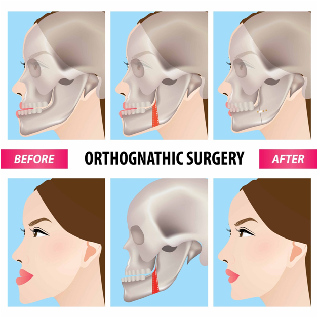 Orthognathic Surgery Clinic in Chennai