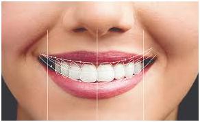 Smile Design Clinic in Chennai