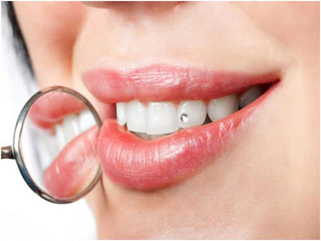 Teeth Jewellery in Chennai