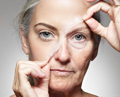 Wrinkles Treatment in Chennai