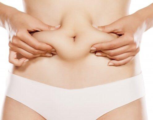 abdominoplasty surgery in chennai
