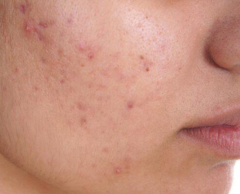 acne treatment in chennai