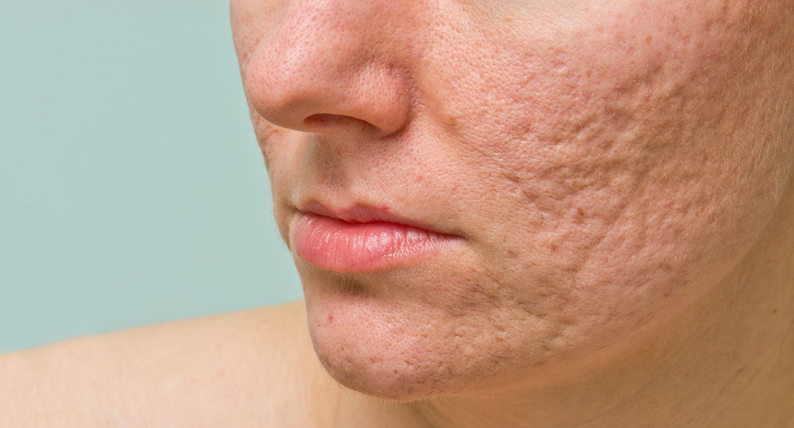 acne scar treatment in chennai