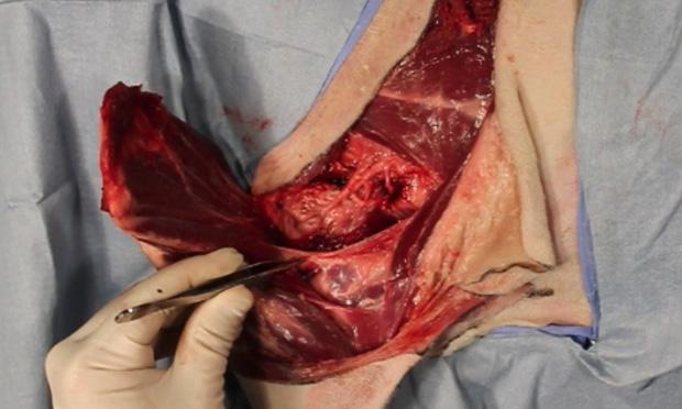 Amputation Surgery in Chennai
