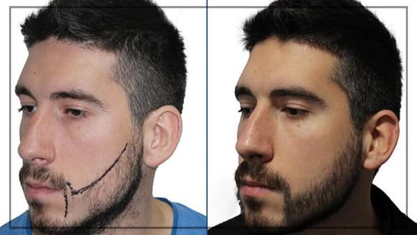 beard and moustache transplant in chennai