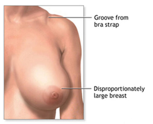 Breast Reduction in Chennai