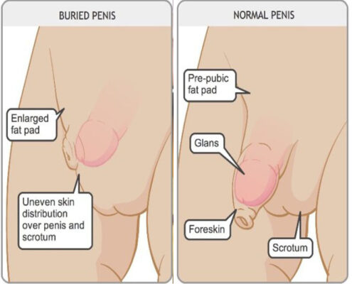 Buried Penis Surgery in Chennai