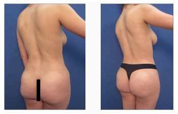 Buttock Reduction Surgery in Chennai