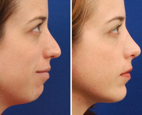 Chin Augmentation Surgery in Chennai