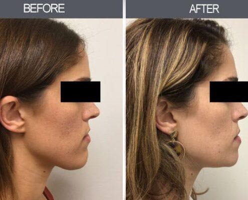 Chin Reduction Surgery in Chennai