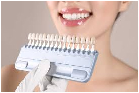 dental crowns clinic in Chennai
