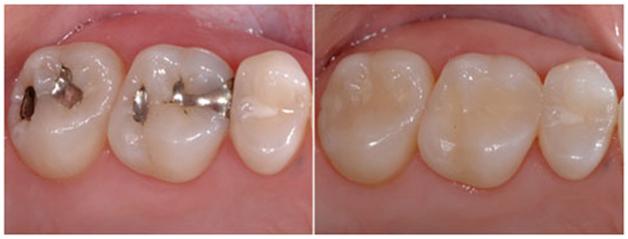 Dental Restorations Clinic in Chennai