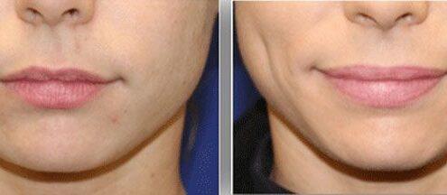 Dimple Creation Surgery in Chennai