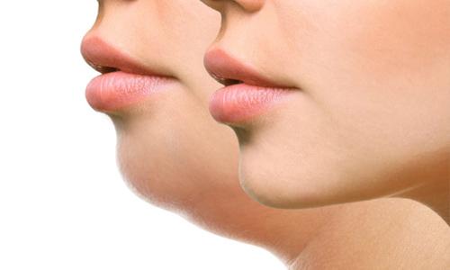 double chin treatment in chennai