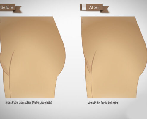 Enlarged Mons Pubis treatment in Chennai