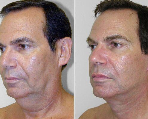 Face Tightening Treatment in Chennai