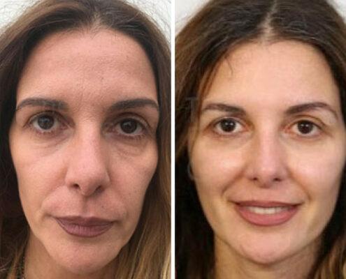Vampire Face Lift Treatment in Chennai