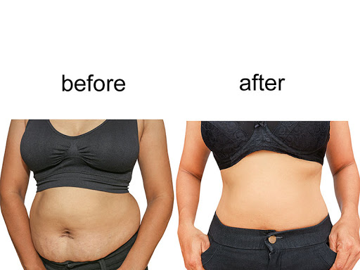 fatlozz treatment before and after