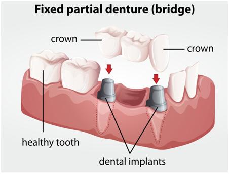 fixed partial denture clinic in Chennai