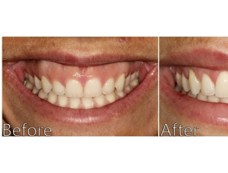 Gingival flap surgery clinic in Chennai