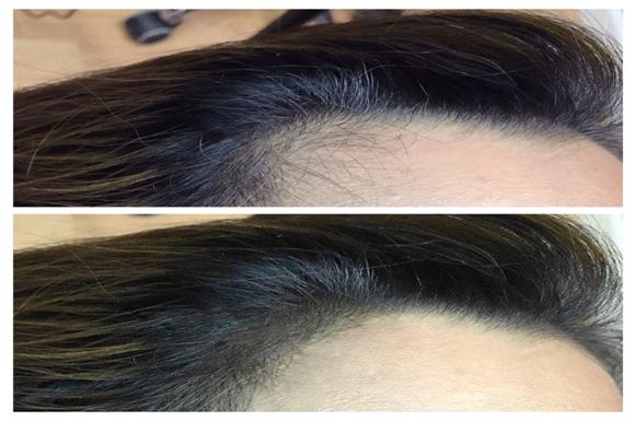 hair line correction in chennai