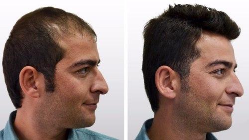 hair transplant in chennai