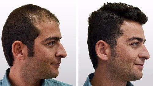 best doctor for hair loss treatment in chennai