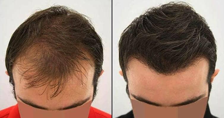 best clinic for hair loss treatment in chennai