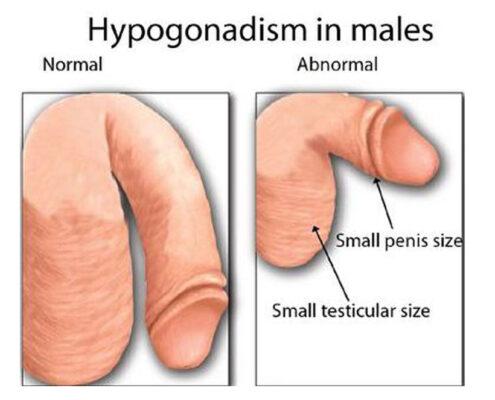 Hypogonadism Treatment in Chennai