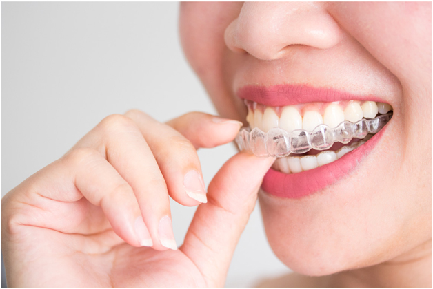 Invisible Braces Clinic in Chennai