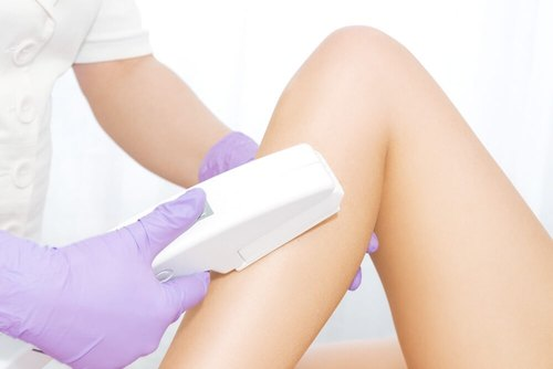 laser hair removal treatment in chennai