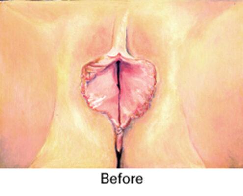 Labiaplasty Surgery in Chennai