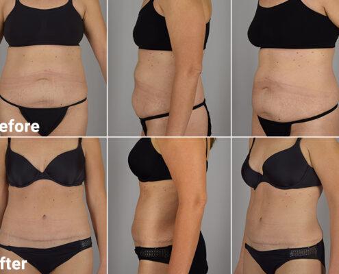 Liposuction Surgery in Chennai