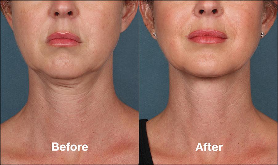 neckline treatment in chennai