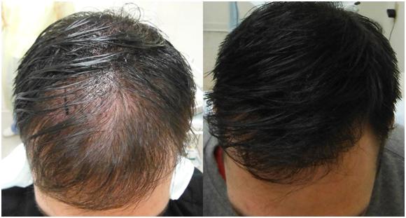 partial baldness treatment