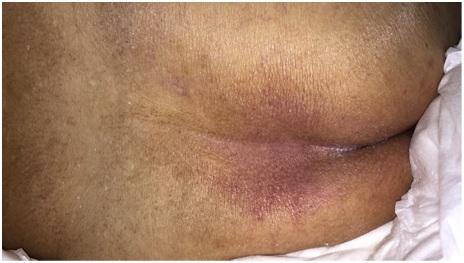 Pressure Sores Treatment in Chennai