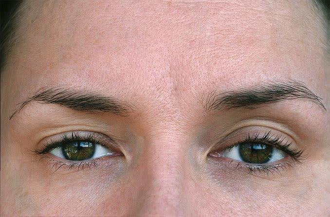 ptosis eyelid droop
