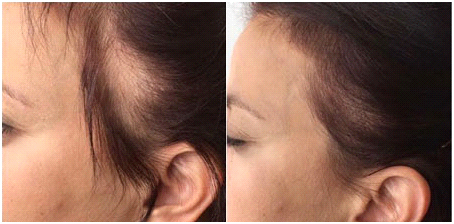 side line correction in chennai