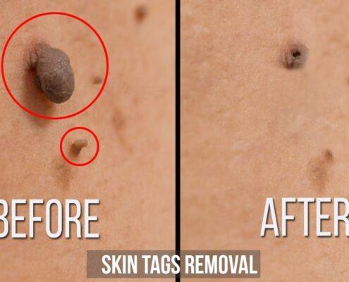 Moles & Skin Tags Removal in Chennai