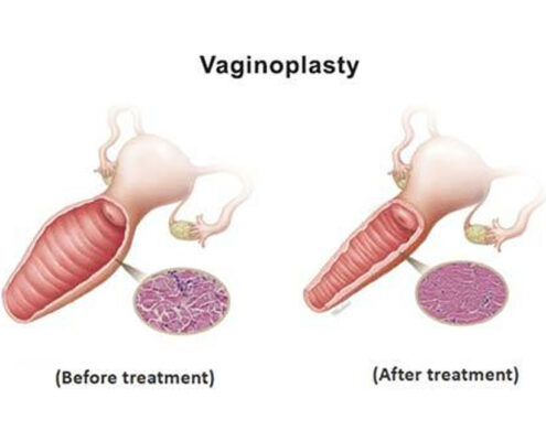 Vaginoplasty Treatment in Chennai
