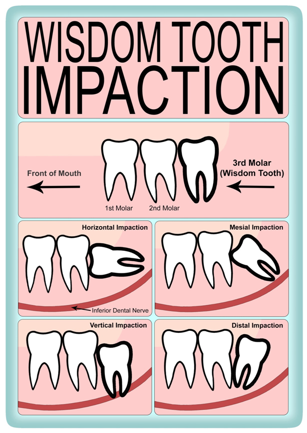 wisdom tooth removal in chennai