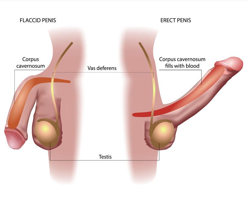 Peyronie's Disease Surgery Chennai