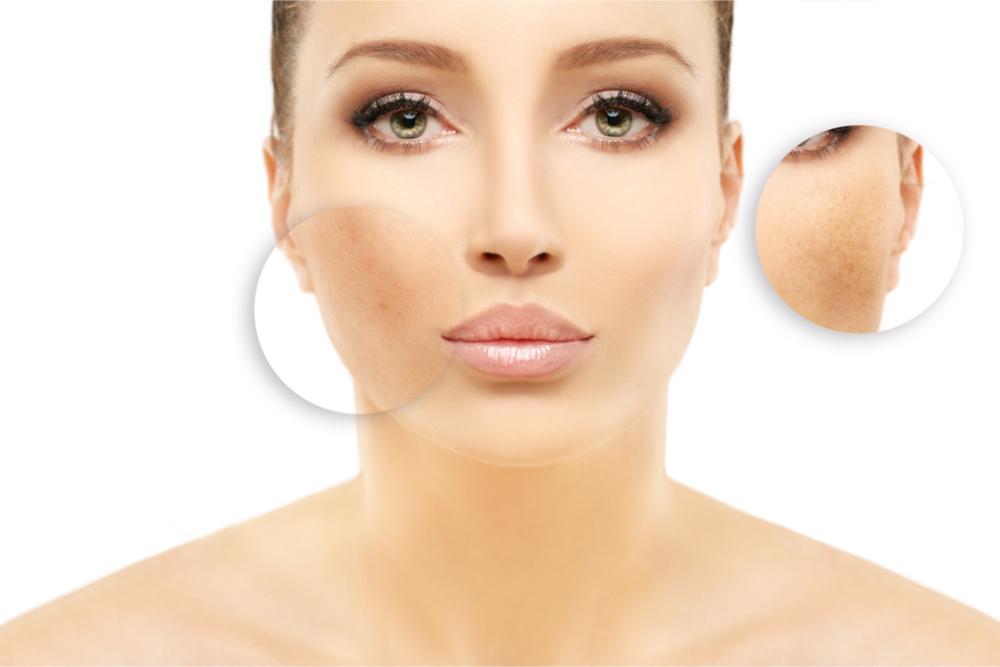 hyperpigmentation treatment in chennai