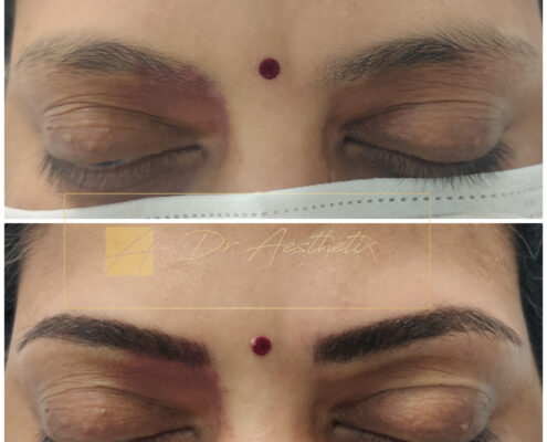 Micro blading cost in Chennai