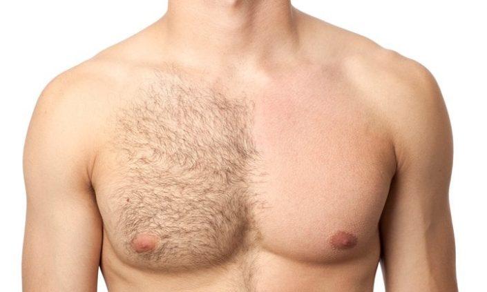 Men chest hair removal in Chennai